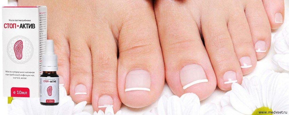 Чем лучше вылечить грибок ногтя на ногах